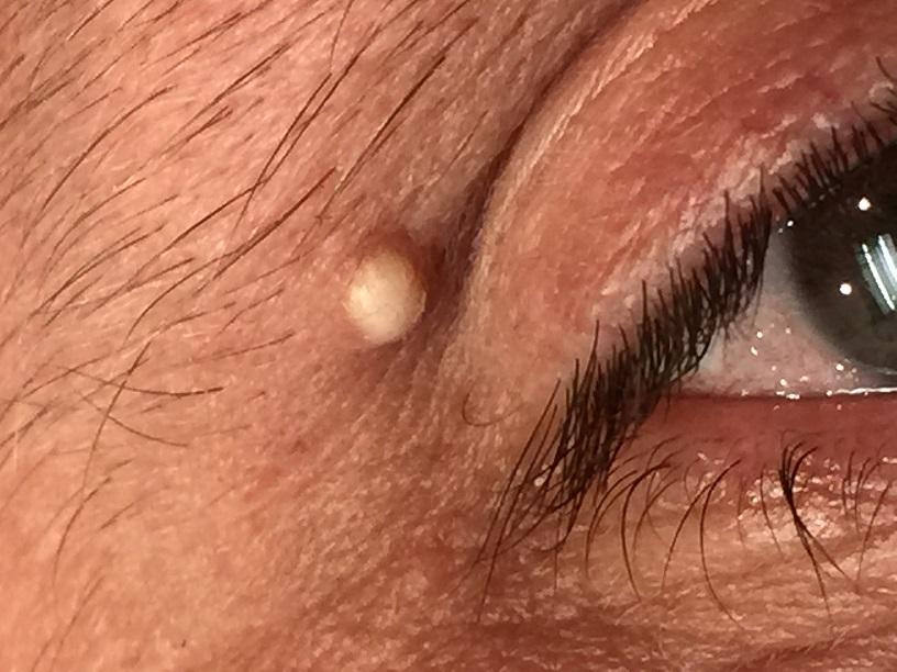 Milia-on-eye